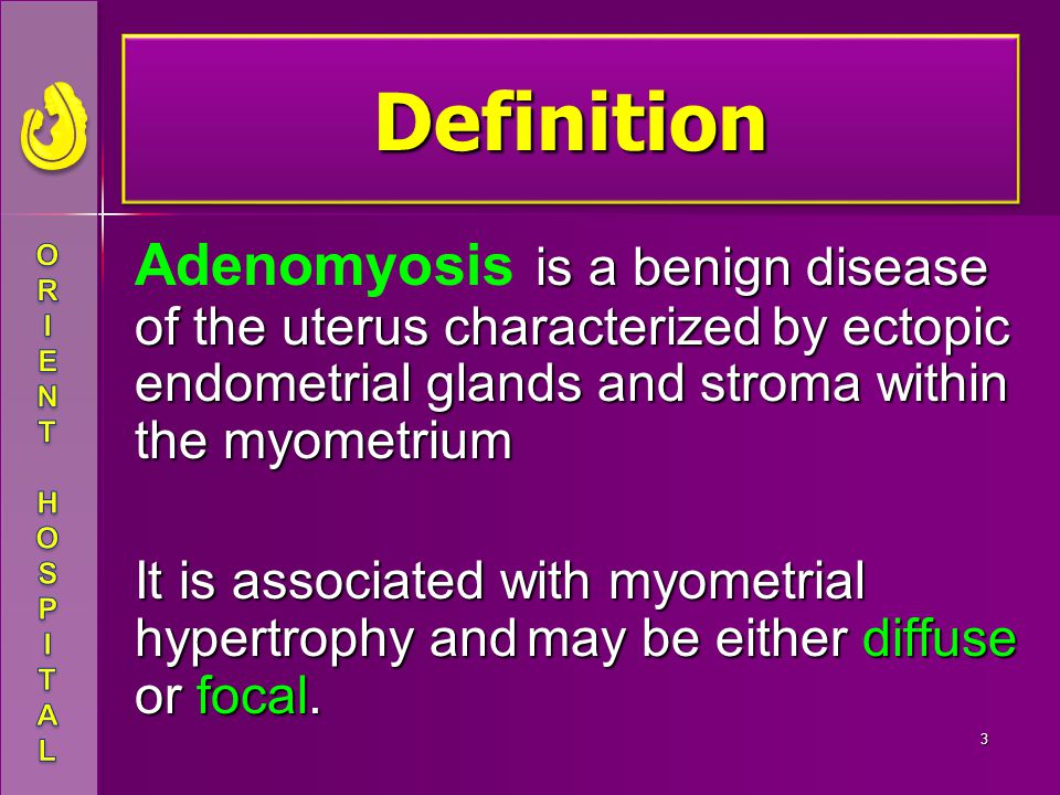 Definition Adenomyosis is a benign disease of the uterus characterized by ectopic endometrial glands and stroma within the myometrium.