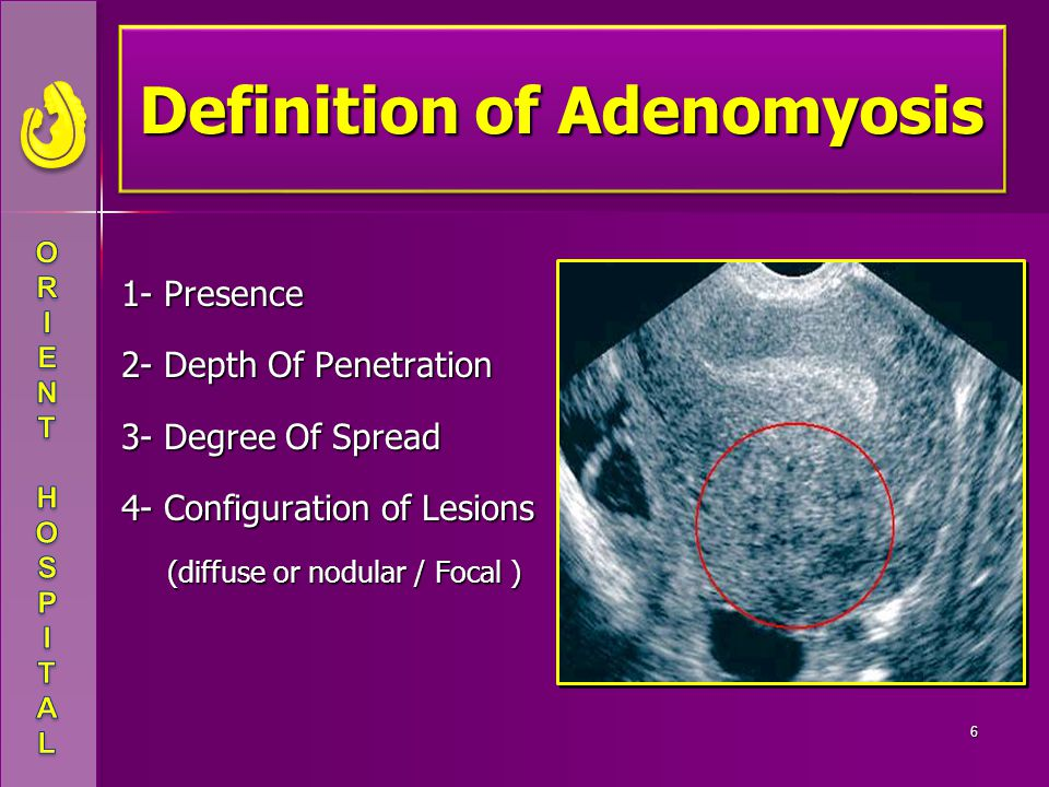 Definition of Adenomyosis