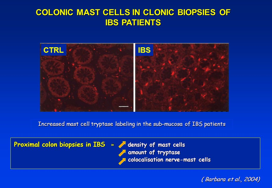 COLONIC MAST CELLS IN CLONIC BIOPSIES OF IBS PATIENTS