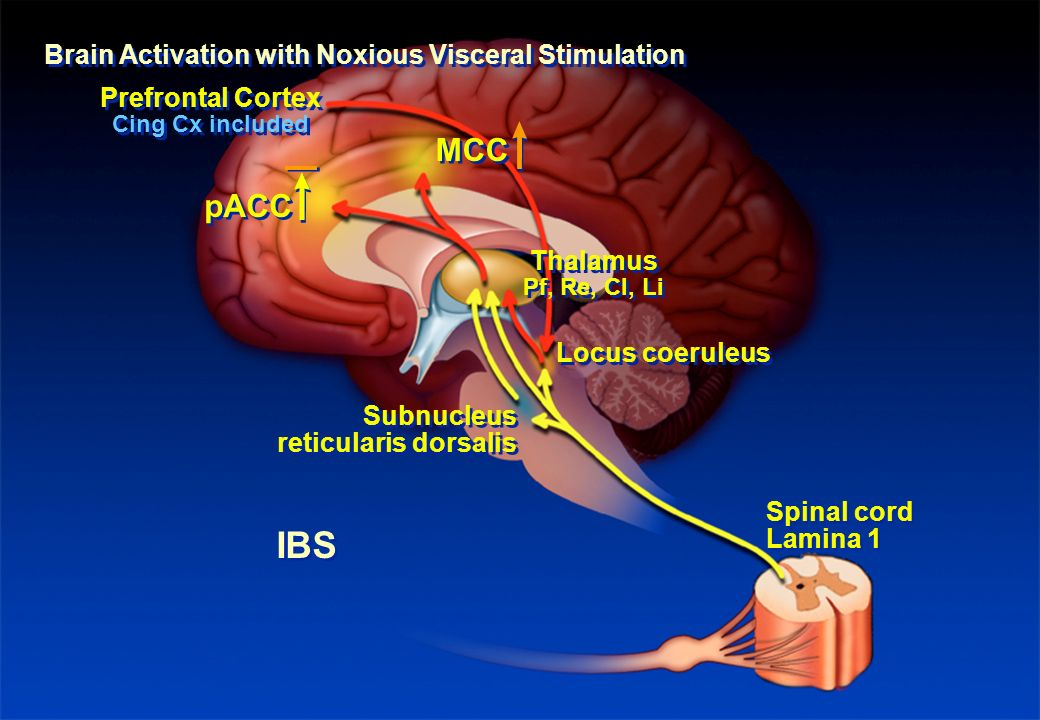 IBS MCC pACC Brain Activation with Noxious Visceral Stimulation