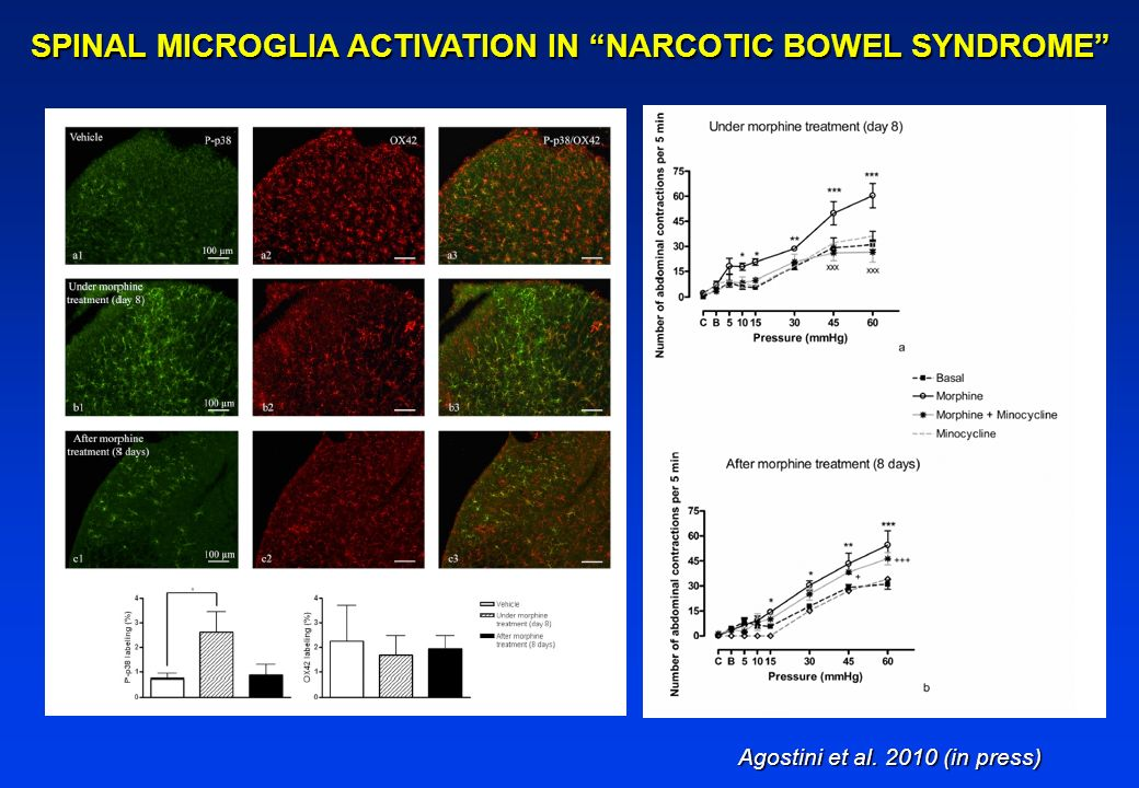 SPINAL MICROGLIA ACTIVATION IN NARCOTIC BOWEL SYNDROME