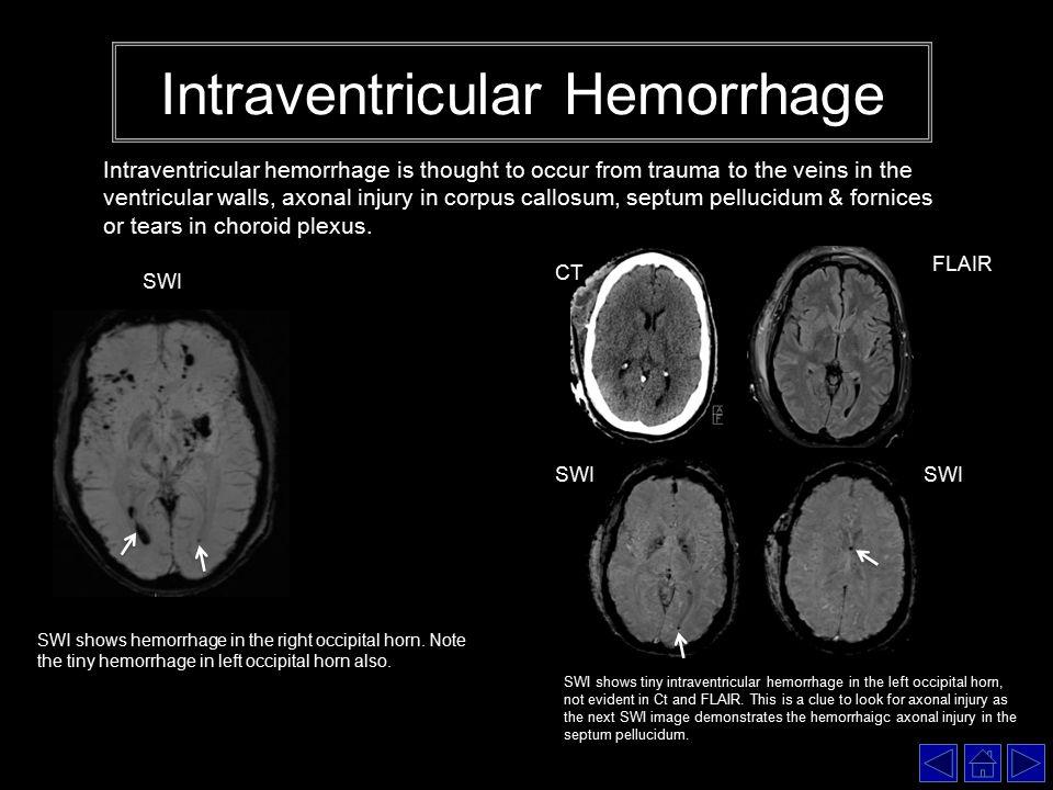 Brain Trauma: Advantag...
