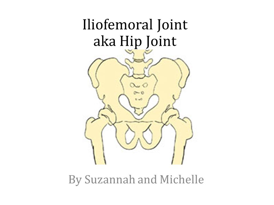 Iliofemoral Joint aka Hip Joint