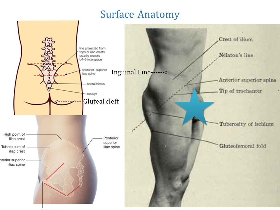 Surface Anatomy Inguinal Line------> < Gluteal cleft