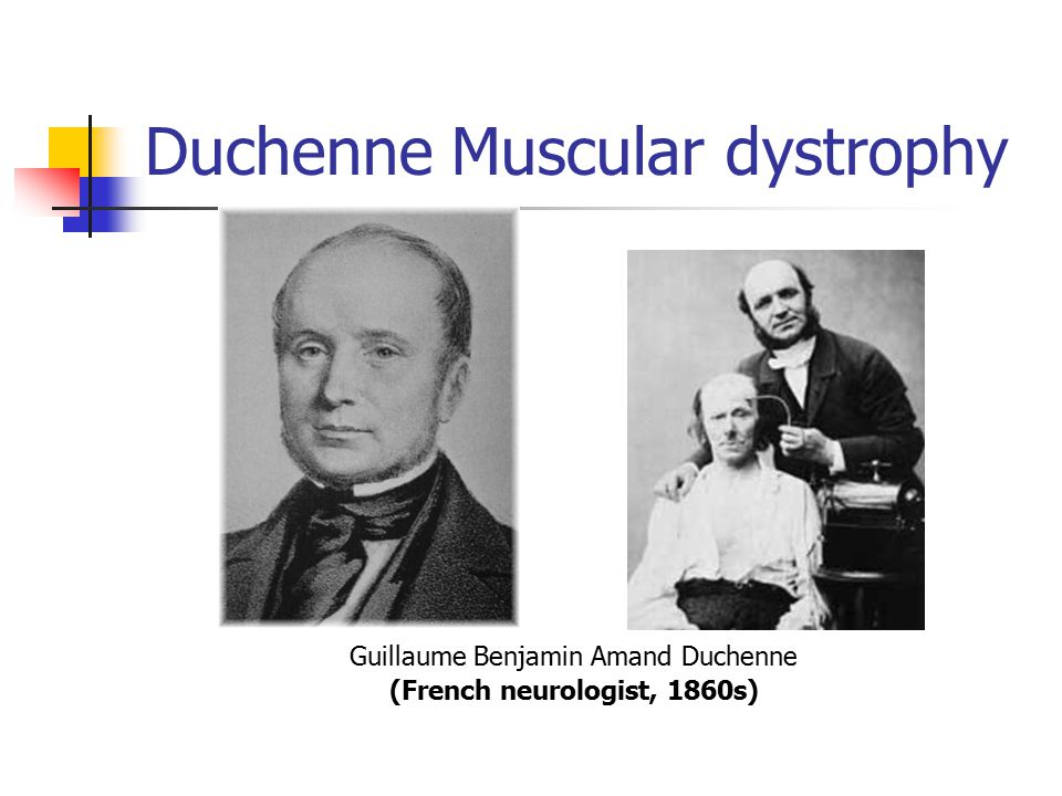 13 year old male student diagnosed with duchenne muscular dystrophy Mclinn has duchenne muscular dystrophy, a degenerative genetic disease symptoms first appear at 3 to 5 years of age, and children afflicted with dmd are likely to be wheelchair-bound by the age .
