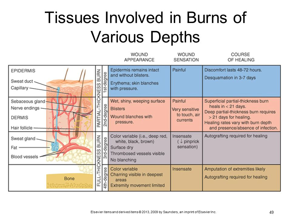inflammation and full thickness burn Full-thickness burns burn area may initially be painless due to destruction of nerves, but it becomes very painful as adjacent tissue becomes inflamed due to chemical mediators released by the damaged tissues.