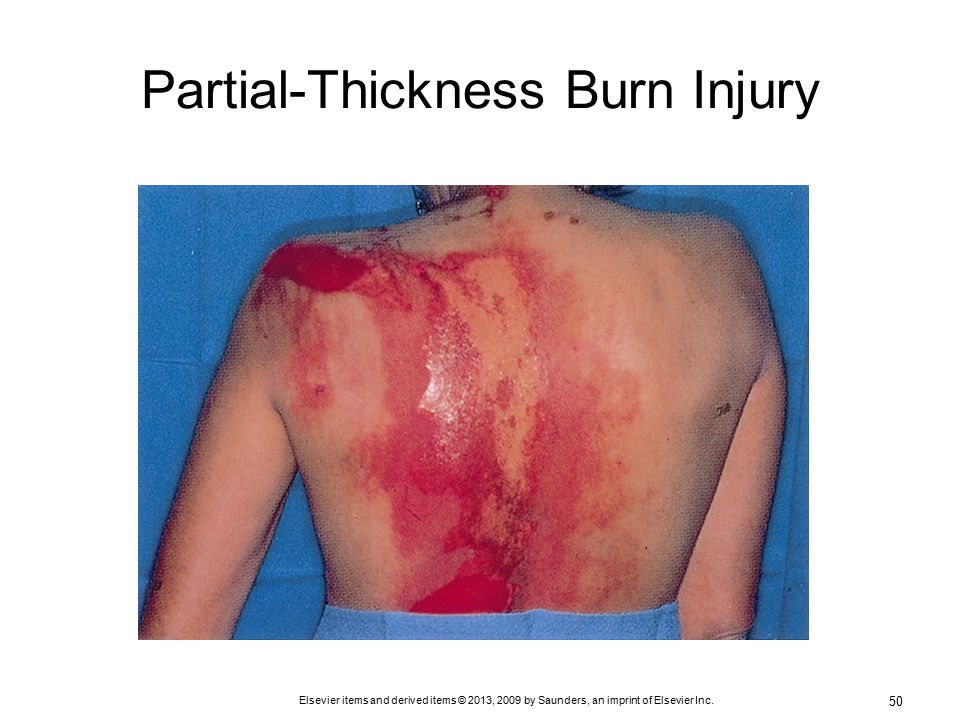 Inflammation and full thickness burn