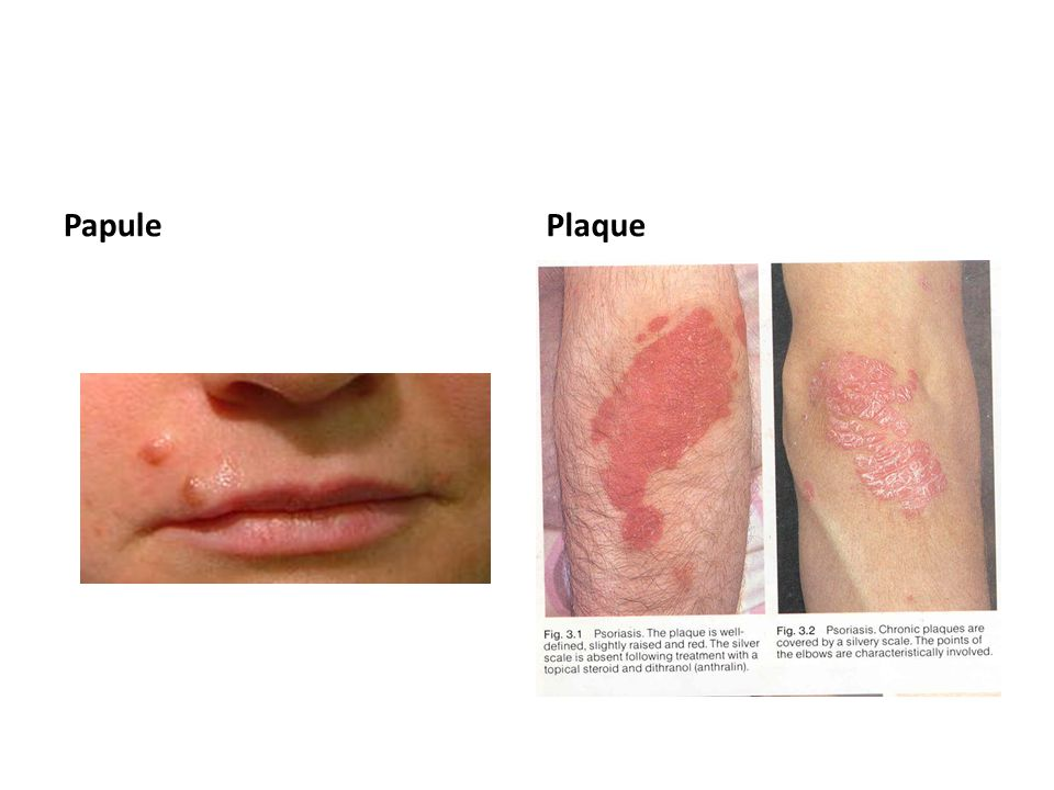 List of Synonyms and Antonyms of the Word: skin plaque