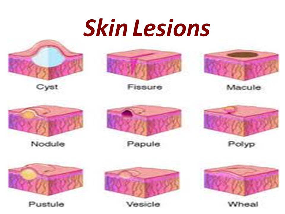 skin lesions. skin lesions kind of lesions in dermatology 1, Skeleton