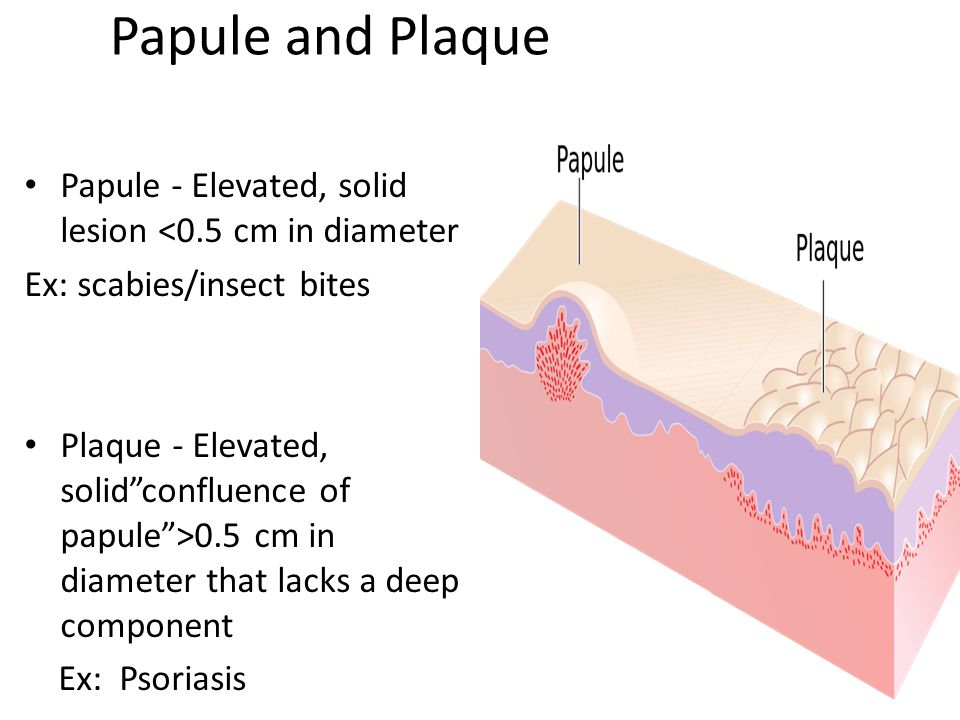 Plaque Skin Lesion Definition Image Mag