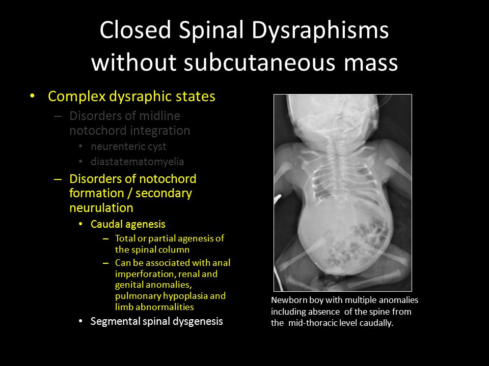 Closed Spinal Dysraphisms without subcutaneous mass