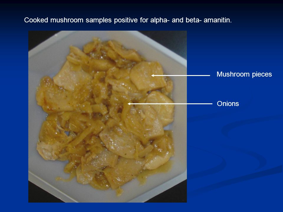Cooked mushroom samples positive for alpha- and beta- amanitin.