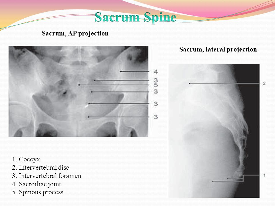 Radiographic Anatomy Rad Ppt Video Online Download