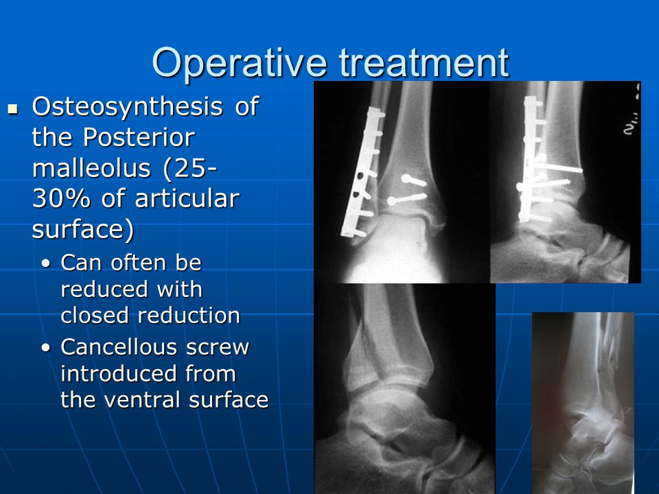 fracture malleolus osteosynthesis Minimally invasive plate osteosynthesis for distal tibia fractures osteosynthesis with locking plates for can be used below the level of the malleolus in.