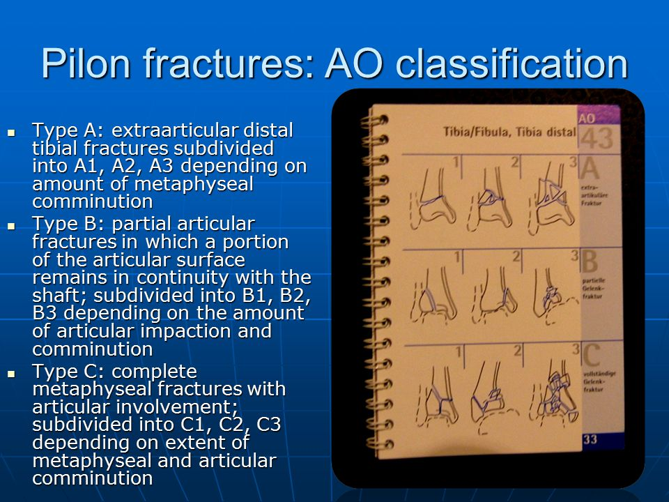 Diagnostics classification and treatment of malleolar - Tibial plafond fracture classification ...