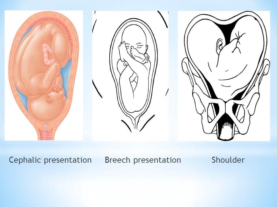 Abnormal Presentations Sinciput Brow Face Ppt Video Online Download