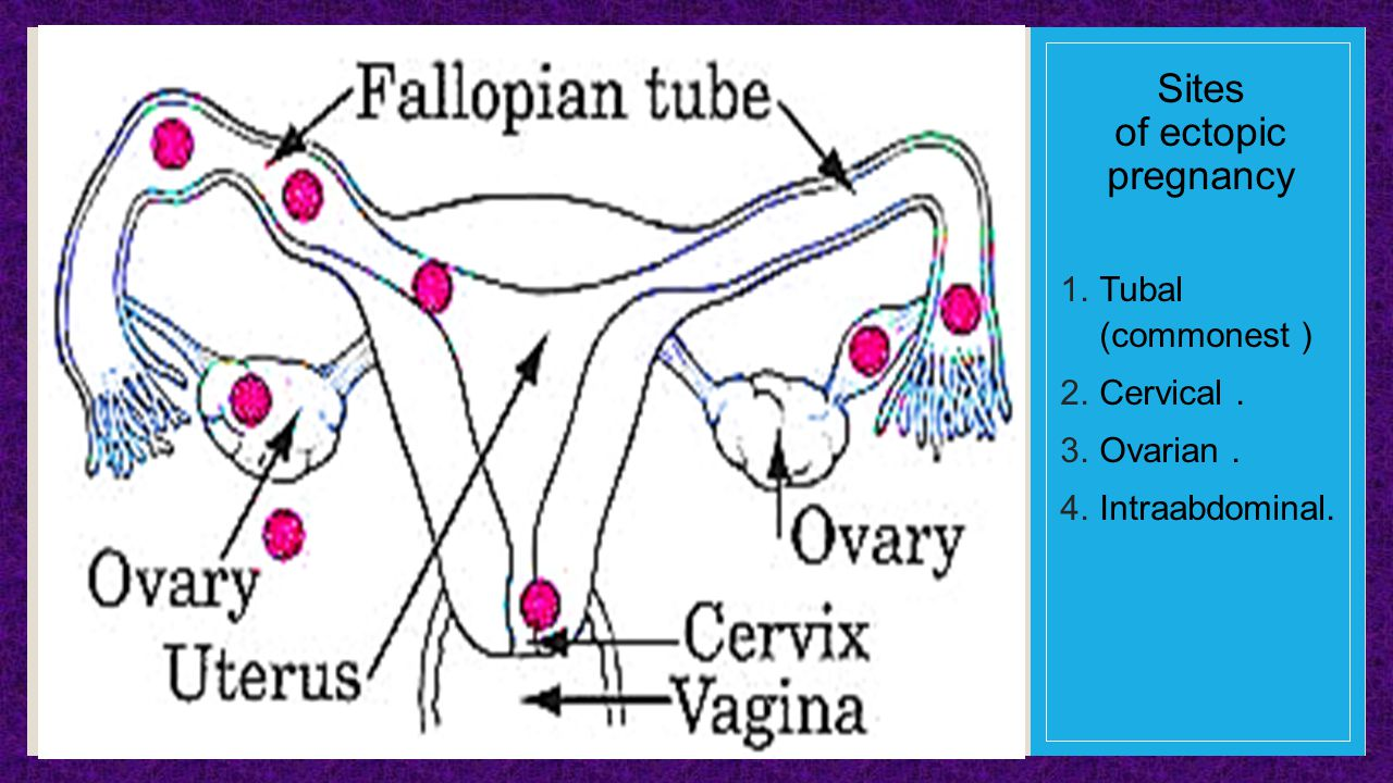 the causes and prevalence of ectopic pregnancies Pregnant women may experience lower tummy pain and/or bleeding in their pregnancy and this may be due to a number of causes it is however very important that an ectopic pregnancy as the cause is excluded.