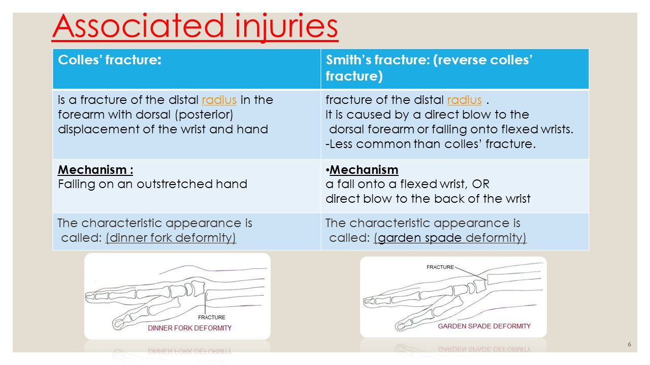 Fracture of radius and ulna - ppt video online download