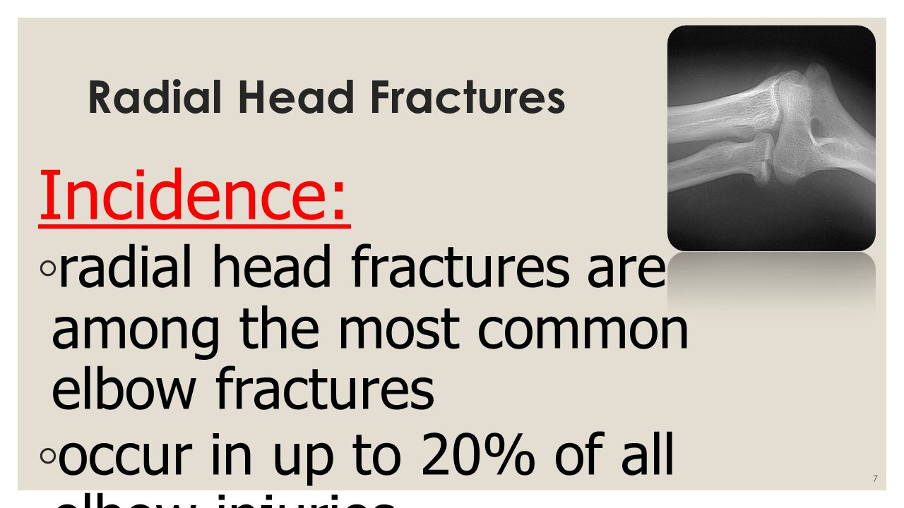 Fracture Of Radius And Ulna Ppt Video Online Download