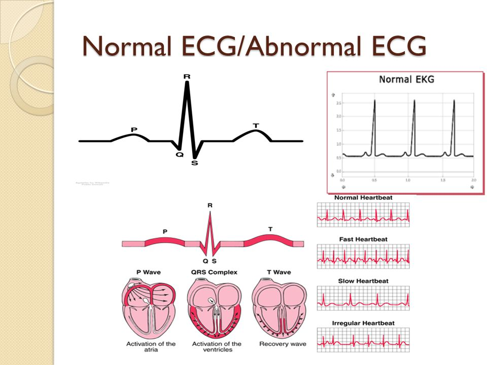 detecting abnormalities in ecg test The treadmill stress ecg is a useful test done routinely to detect problems that may not be obvious while the heart is at rest extremely rare complications include a heart attack and abnormal heart rhythms but these are seen more in cardiac labs in the hospital settings where the test is performed on cardiac patients who.