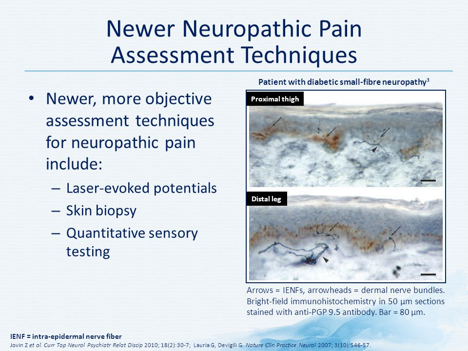 Newer Neuropathic Pain Assessment Techniques