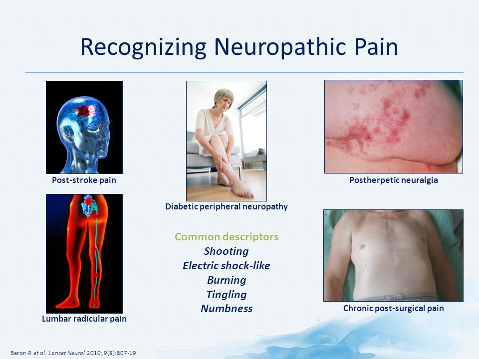 Recognizing Neuropathic Pain