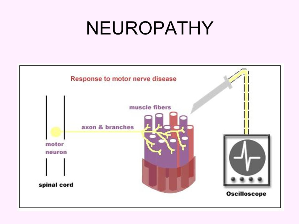 Electromyography and motor nerve conduction velocity ppt for What is motor neuropathy