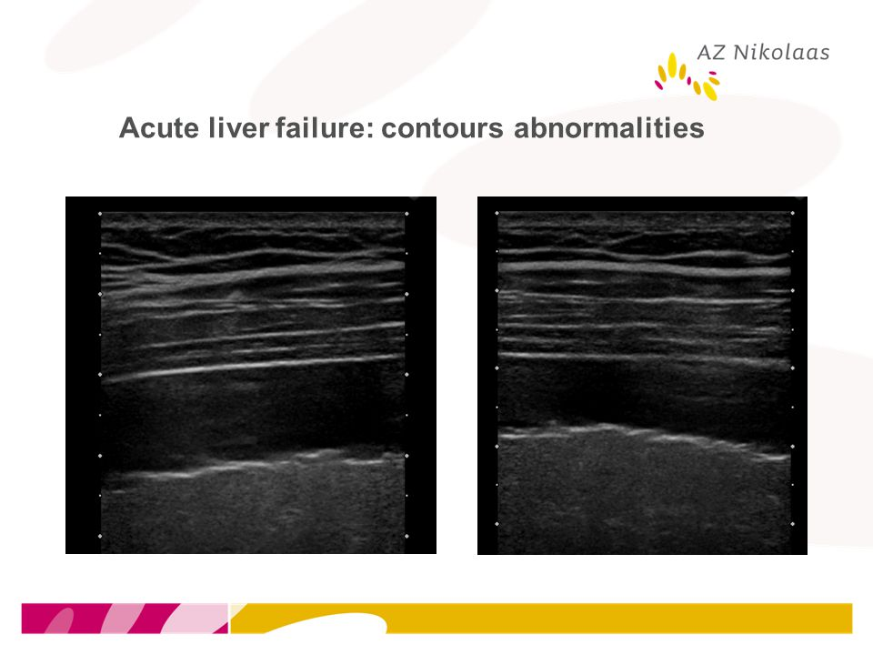 Acute liver failure: contours abnormalities