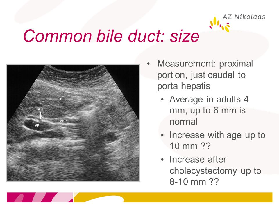 Common bile duct: size Measurement: proximal portion, just caudal to porta hepatis. Average in adults 4 mm, up to 6 mm is normal.