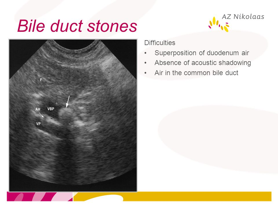 Bile duct stones Difficulties Superposition of duodenum air