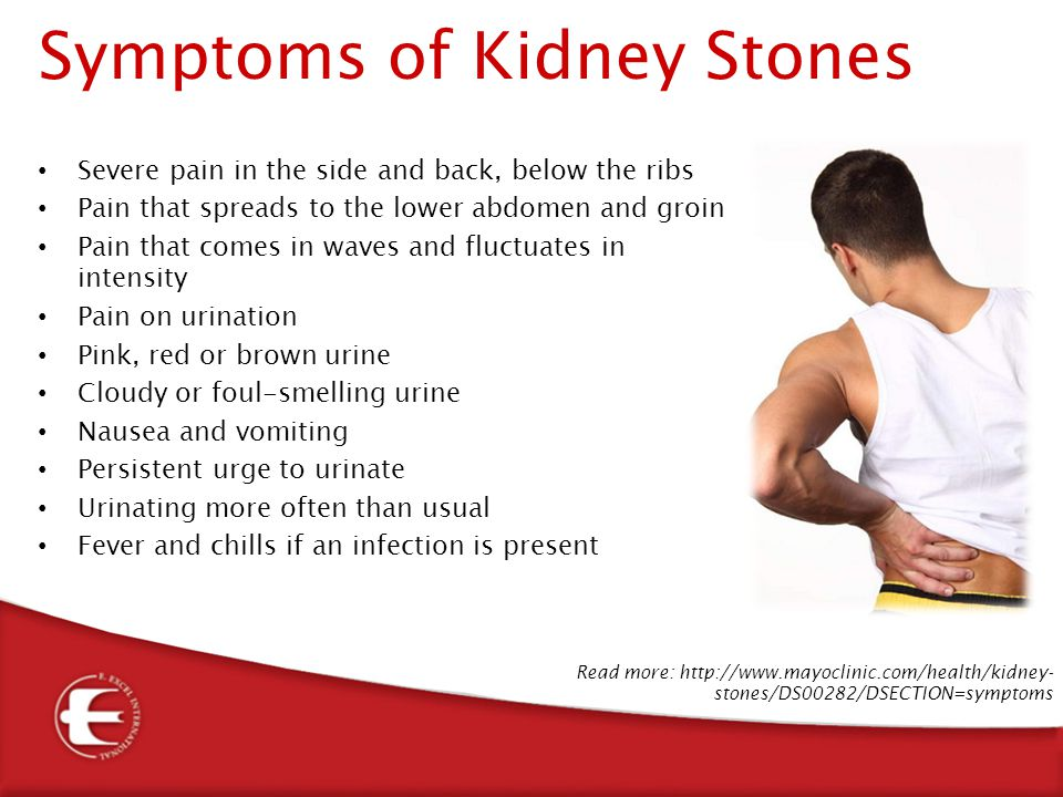 Kidney Stone Pain Location Male play key roles in your...