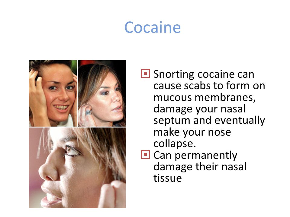 Cocaine Nose Damage From Related Keywords & Suggestions - Cocaine