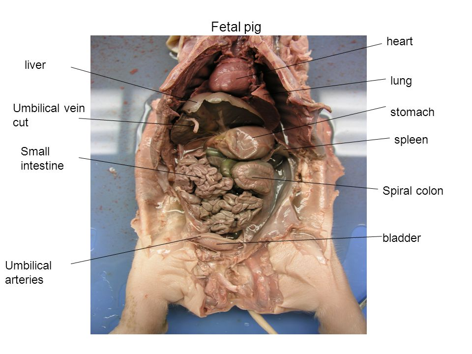 Similiar Location Of Spleen In A Fetal Pig Keywords