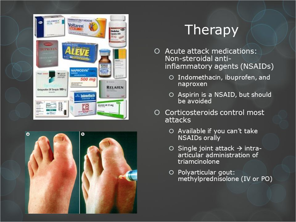 acute gouty arthritis causes gout hip fracture gout in foot and toe