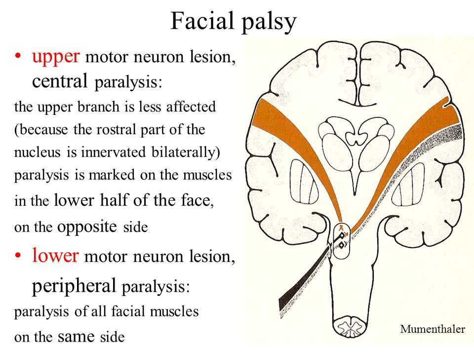 That lower motor nuclear facial palsy and