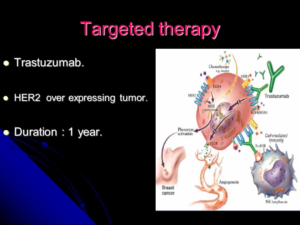 Targeted therapy Trastuzumab. Duration : 1 year.