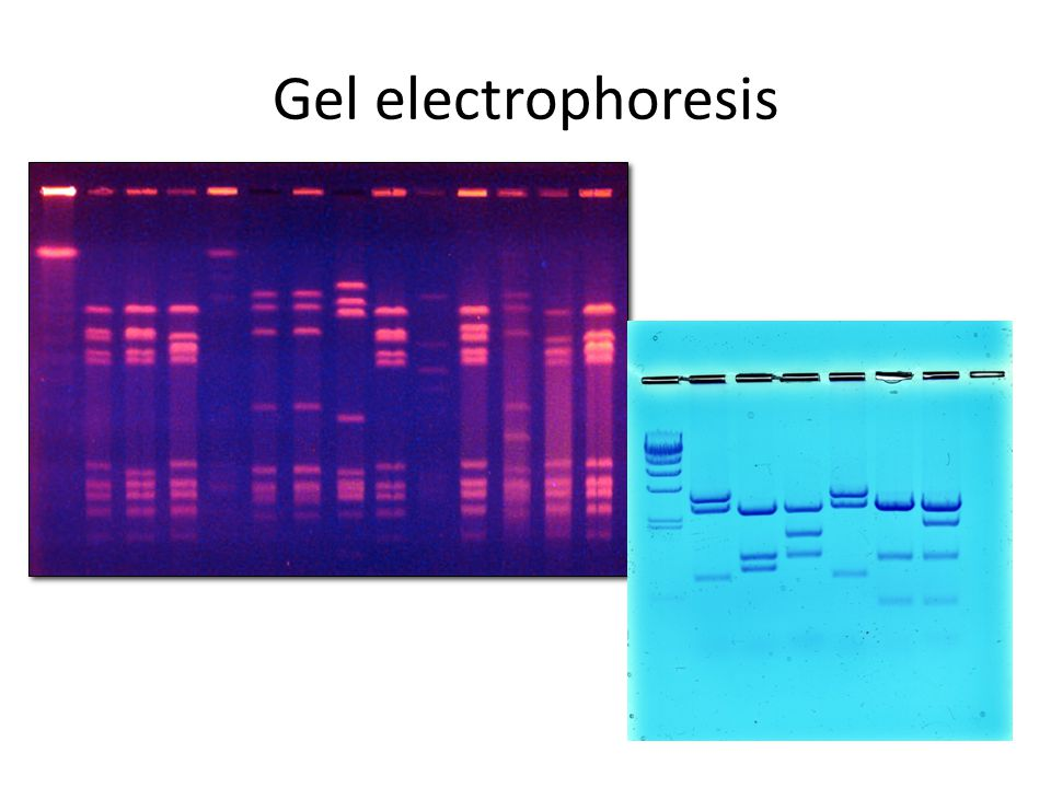 electrophoresis and restriction enzymes