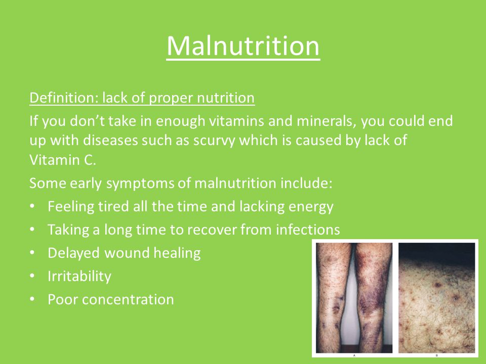 Malnutrition Definition: lack of proper nutrition