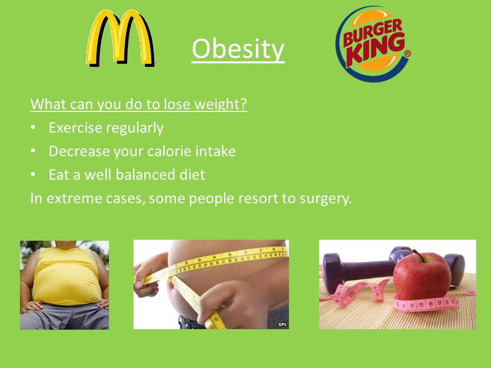 Obesity What can you do to lose weight Exercise regularly