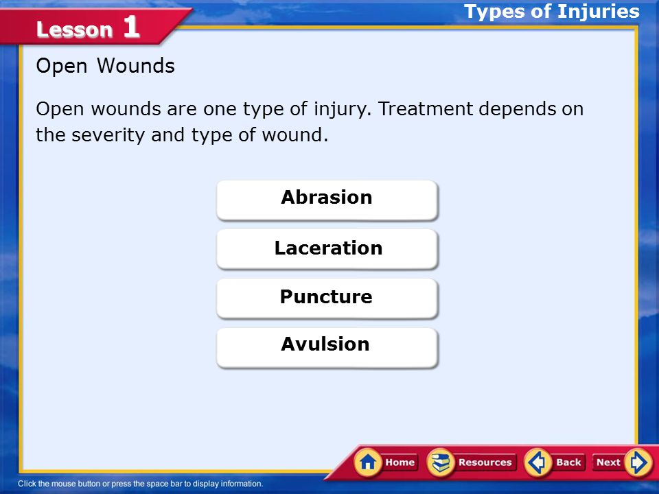 Open Wounds Types of Injuries
