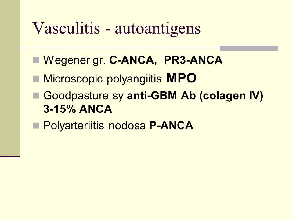 p anca polyarteritis nodosa