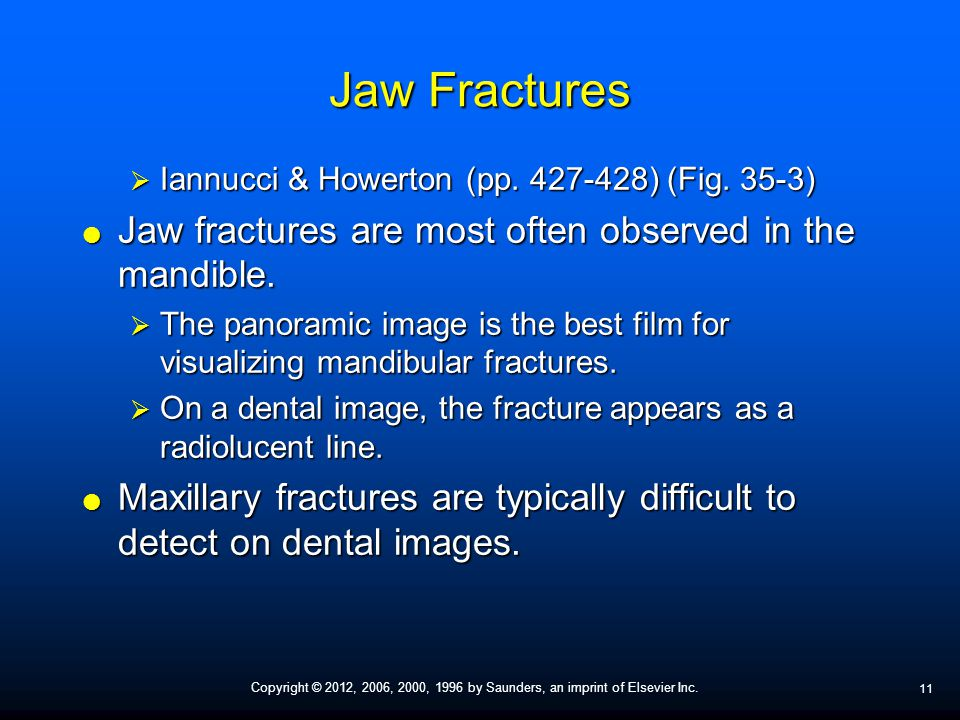 Jaw Fractures Jaw fractures are most often observed in the mandible.