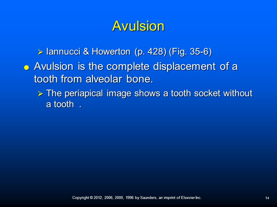 Avulsion Iannucci & Howerton (p. 428) (Fig. 35-6) Avulsion is the complete displacement of a tooth from alveolar bone.