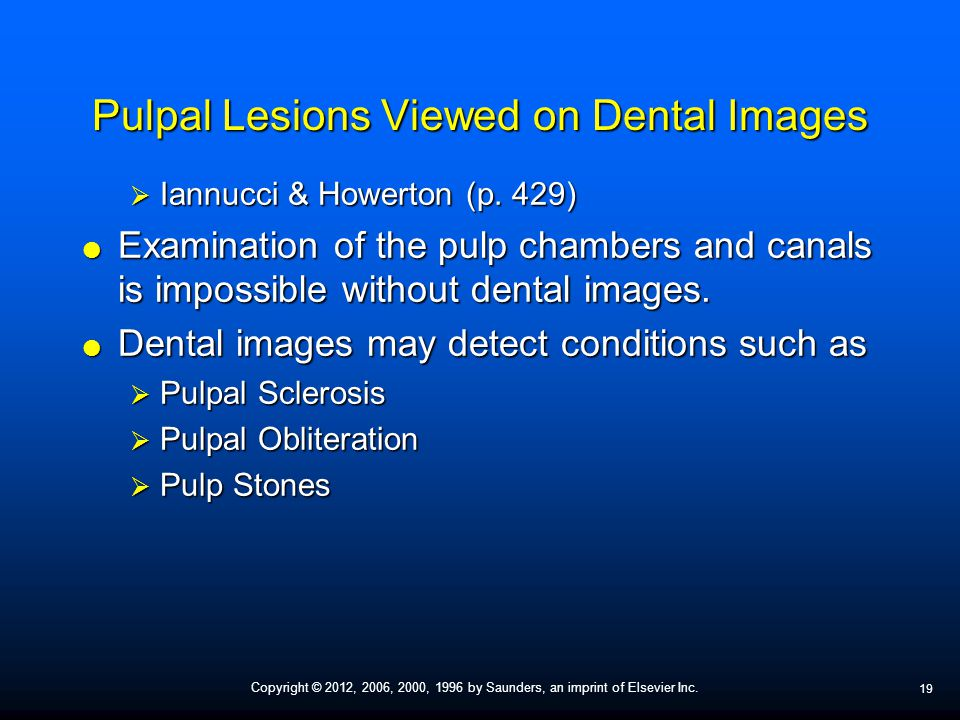 Pulpal Lesions Viewed on Dental Images
