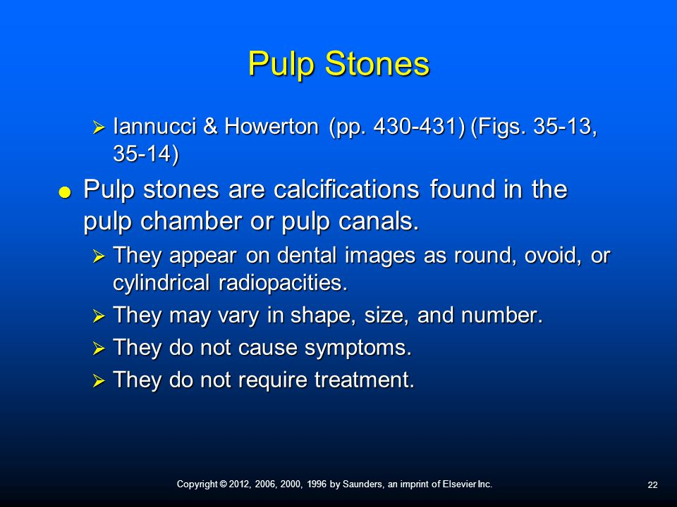 Pulp Stones Iannucci & Howerton (pp ) (Figs , 35-14) Pulp stones are calcifications found in the pulp chamber or pulp canals.