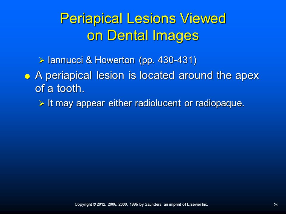 Periapical Lesions Viewed on Dental Images