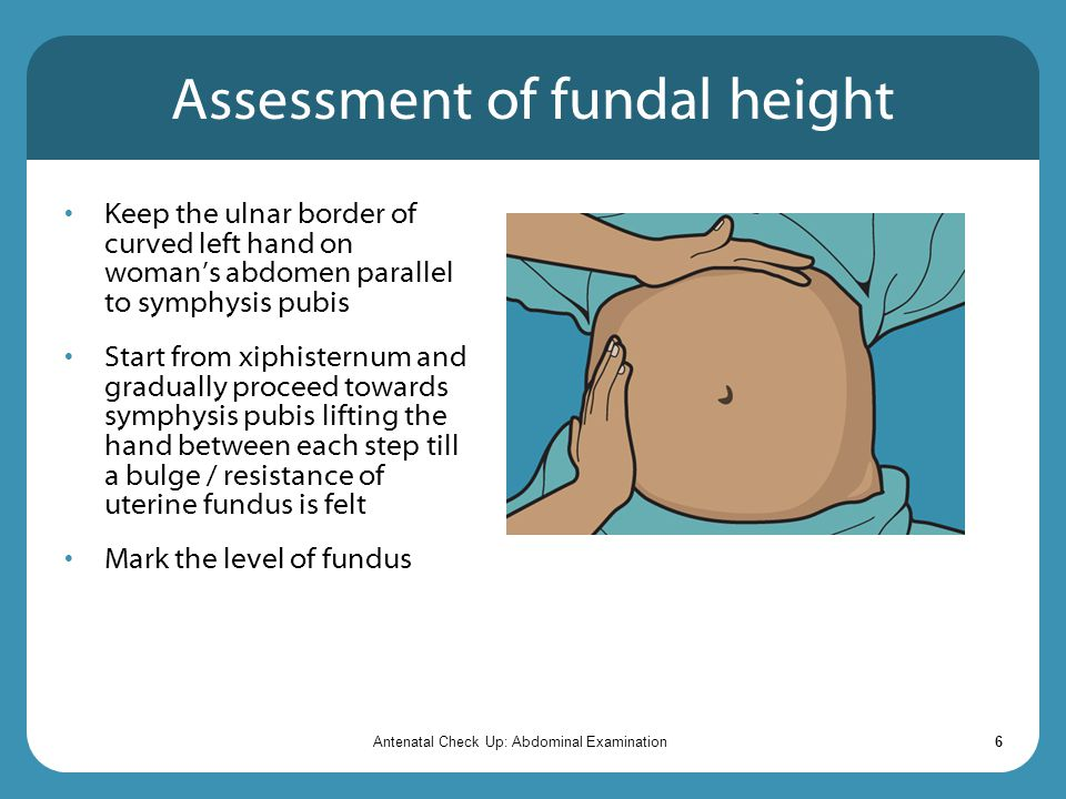 Assessment of fundal height