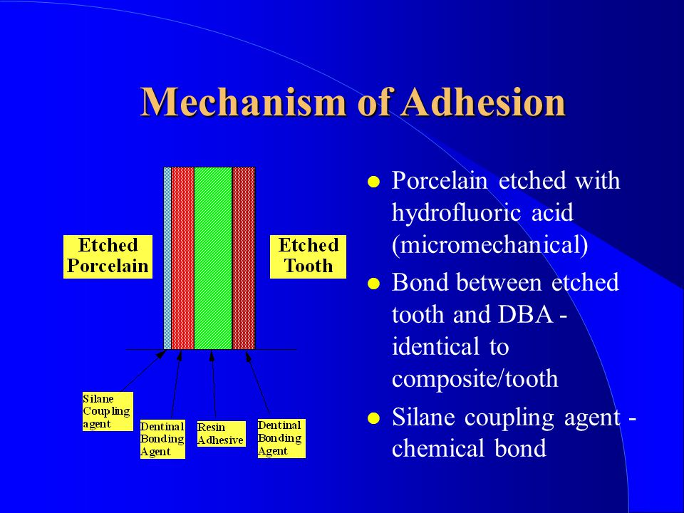 Mechanism of Adhesion Porcelain etched with hydrofluoric acid (micromechanical) Bond between etched tooth and DBA - identical to composite/tooth.