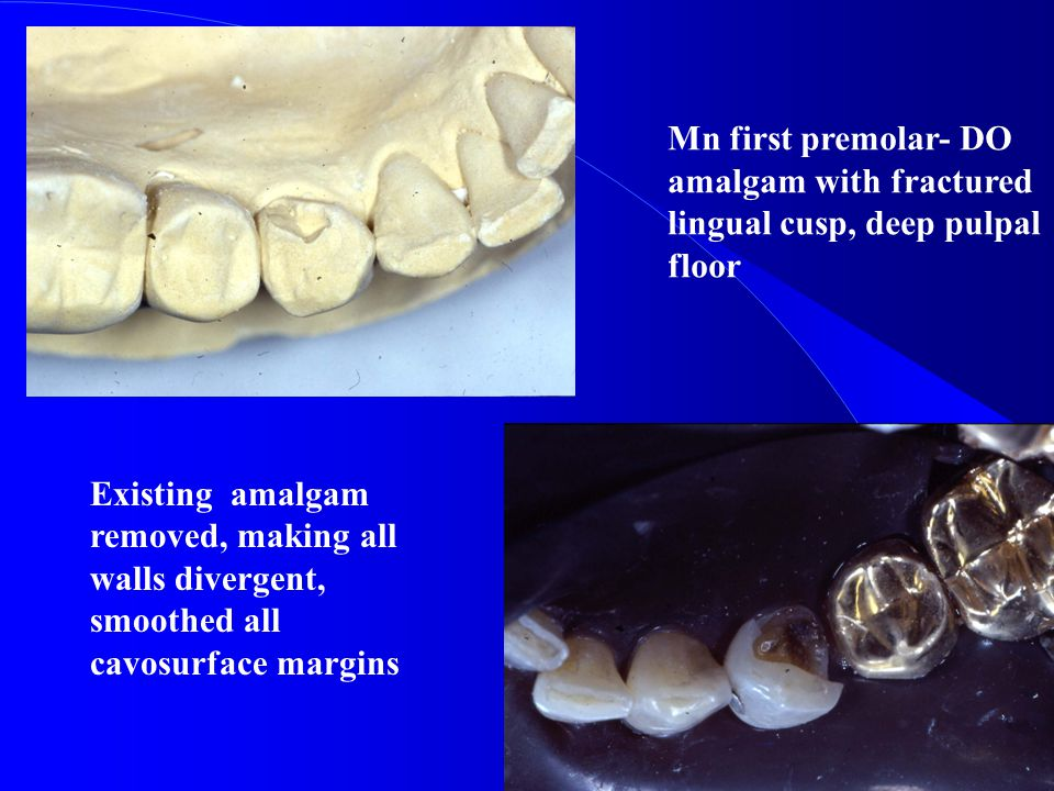 Mn first premolar- DO amalgam with fractured lingual cusp, deep pulpal floor
