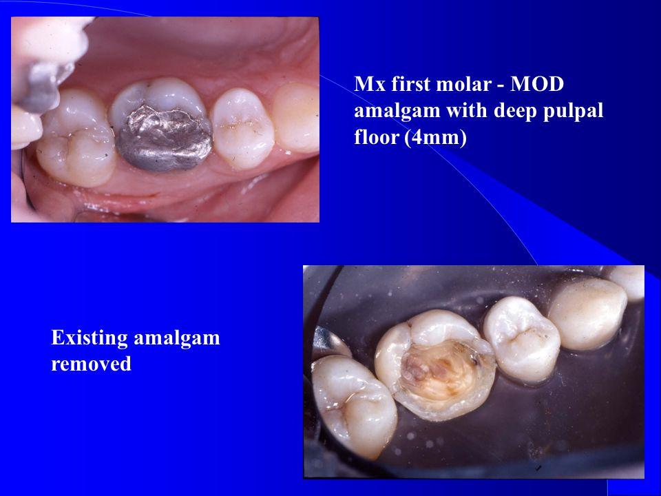 Mx first molar - MOD amalgam with deep pulpal floor (4mm)